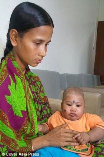İki başlı bebek şoke etti!
