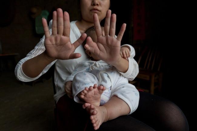 Bu bebeğin tam 31 parmağı var!
