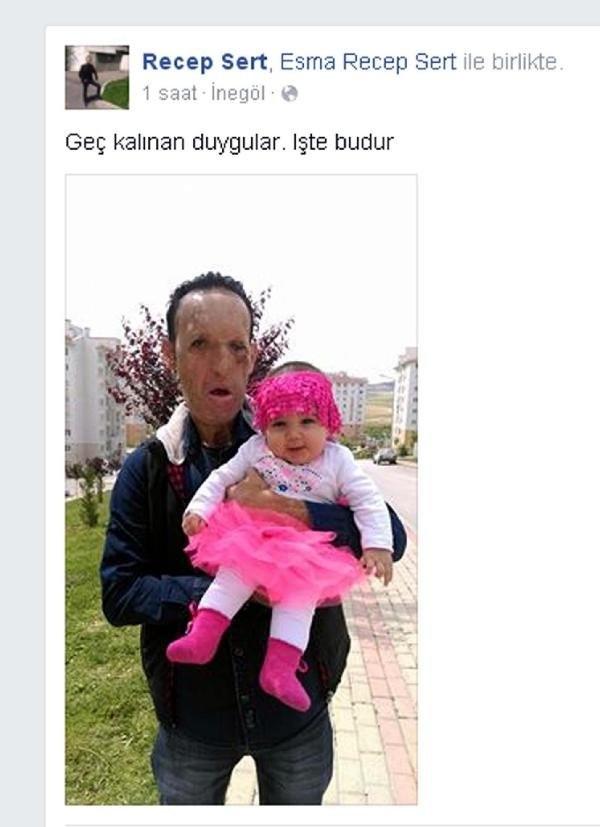Yüz Nakilli Sert, Kızıyla Fotoğrafını Paylaştı