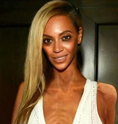 Zayıflıktan kemikleri sayılıyor Beyonce'a ne oldu böyle!