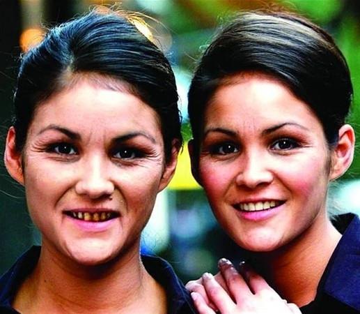 İkizlere bir de böyle bakın