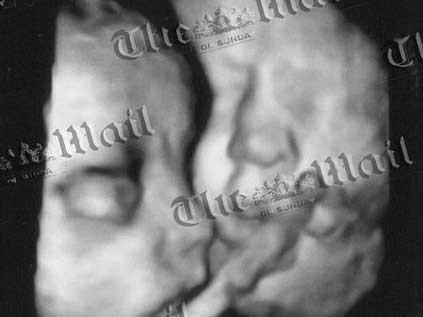 Yapışık ikizler yaşam mücadelesi veriyor