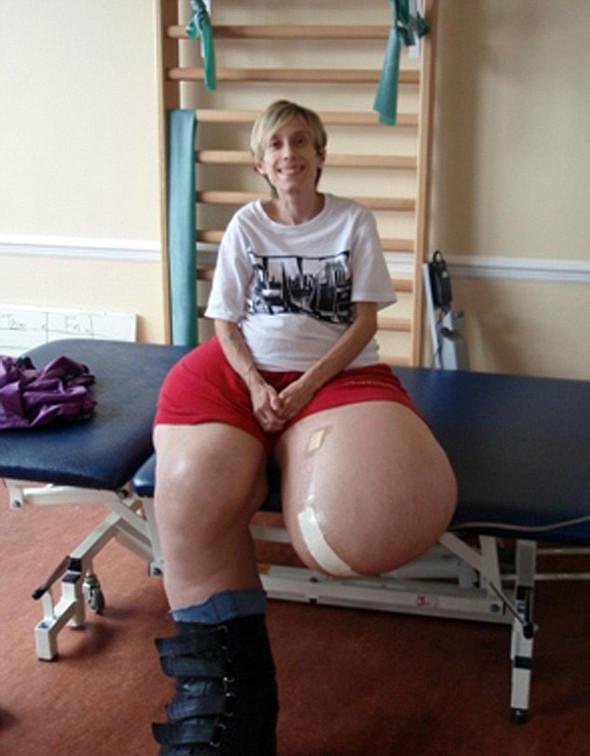 Bacakları 107 kilo oldu...