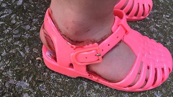 Jel sandalet ayağını bu hale getirdi
