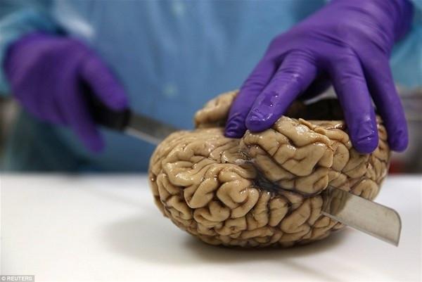 Hayretler içinde bırakan beyin bankası