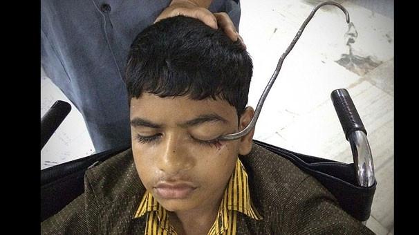 Gözünden beynine demir saplanan çocuk kurtarıldı