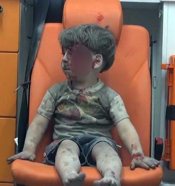 Halepli çocuk insanlığı utandırdı