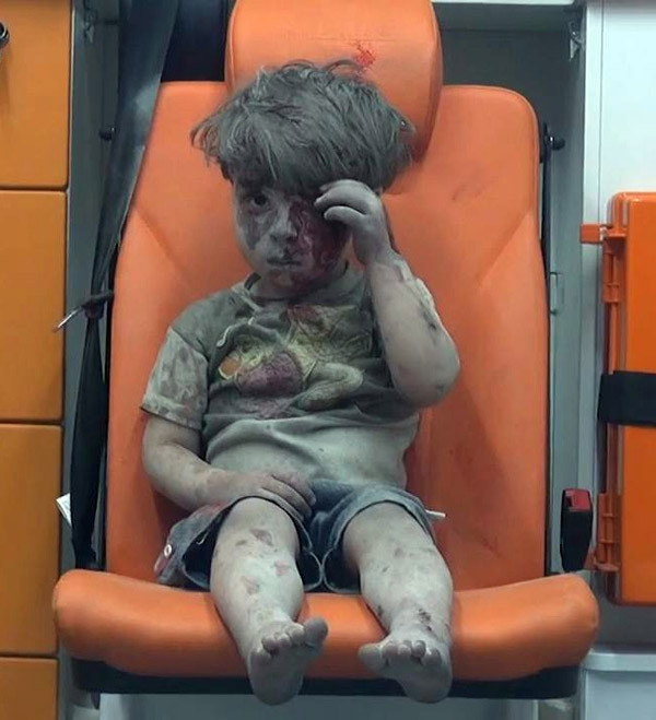 Dünyayı ağlatan çocuğun doktoru konuştu