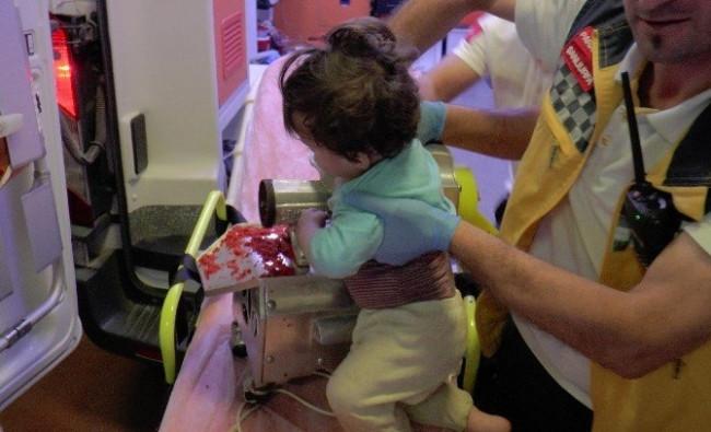 1 yaşındaki bebek kolunu kıyma makinesine kaptırdı