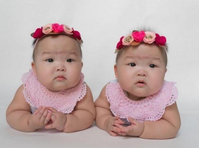 Instagram'ın en sevimli ikizleri