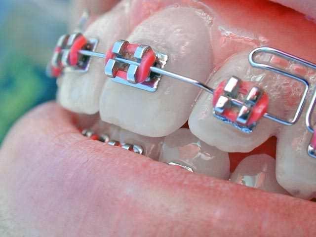 Diş teli tedavisinde dikkat edilmesi gereken 11 nokta