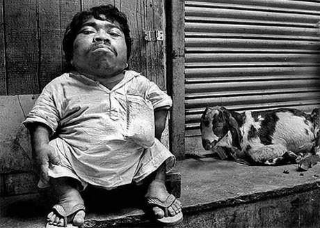 Dünyanın en küçük adamı