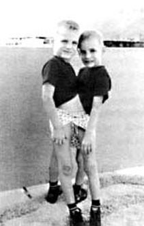 En yaşlı siyam ikizleri