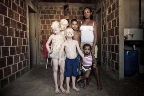 Dünyayı şaşırtan albino kardeşler
