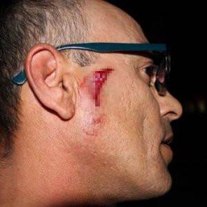 Özel Harekat Timleri gazetecilere böyle saldırdı !