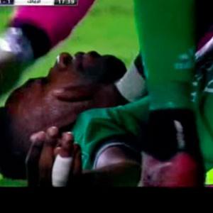 Mısır Ligi'nde korkunç sakatlık !