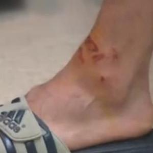 Köybaşı'nın maçtan sonra ayağı bu hale geldi
