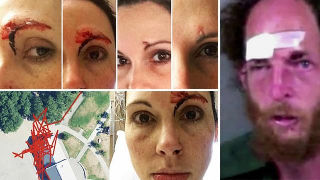 Ormanda spor yapan kadın, saldırgana dehşeti yaşattı !