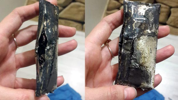 Doktorun cebindeki telefonu patladı !