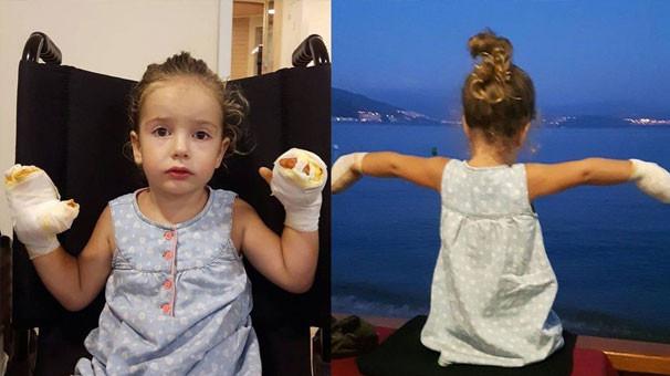Uçan balon 3 yaşındaki Mira'yı yaktı !