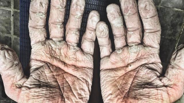 Dünya kürek rekortmeni ellerinin fotoğrafını paylaştı