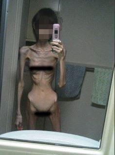 Büyükbabasının aç bıraktığı genç kız sadece 16,8 kilo !