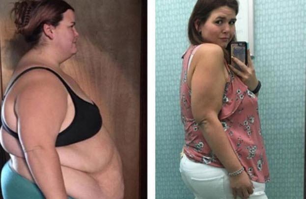 100 kilo veren genç kadını kimse tanıyamıyor