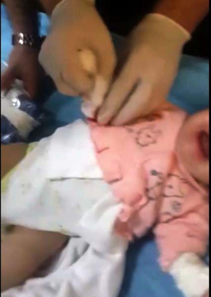 Makasla bebeğin parmağını kesti