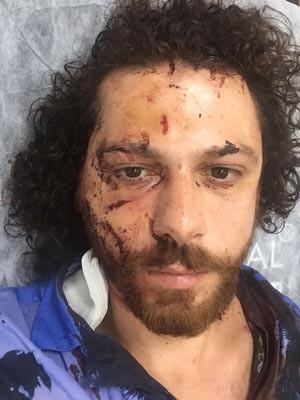 Kadıköy'de oyuncuya şok saldırı !