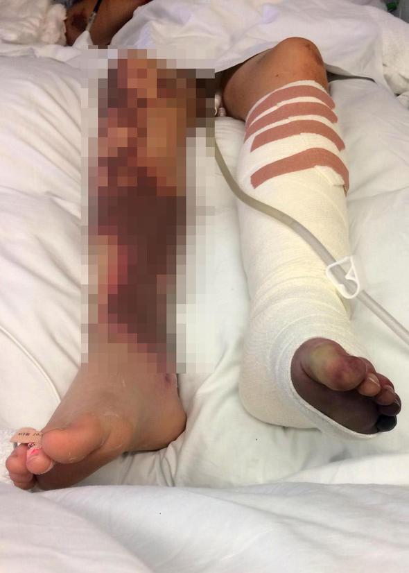 Yanlış teşhis yüzünden bacağından oldu