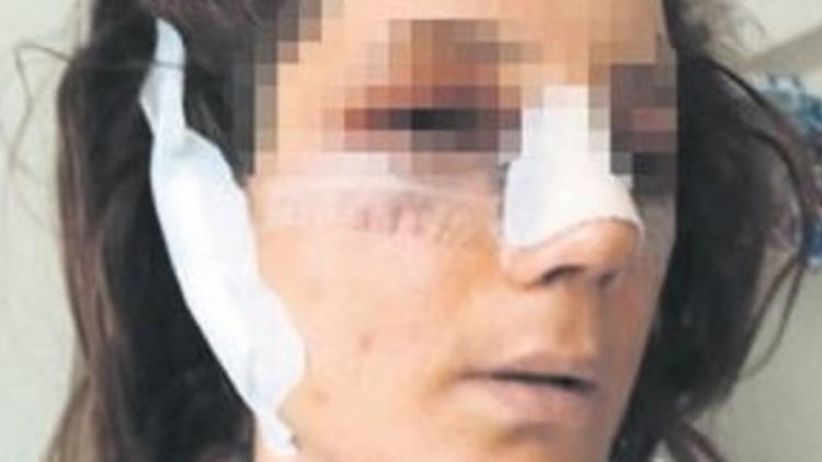 Burun ameliyatı olan kadına 7 yıl sonra büyük şok !