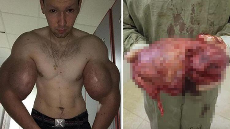 Kol kaslarıyla ünlenen Rus ameliyat oldu