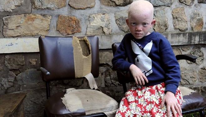 Albino çocuğun elini kestiler! Sebebi tüyler ürpertiyor