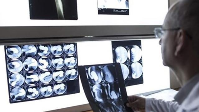 Türk bilim insanlarından kanser tedavisi için büyük buluş