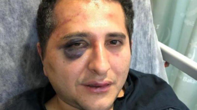 Erdoğan'ın korumalarının dövdüğü avukata CHP liderinden telefon