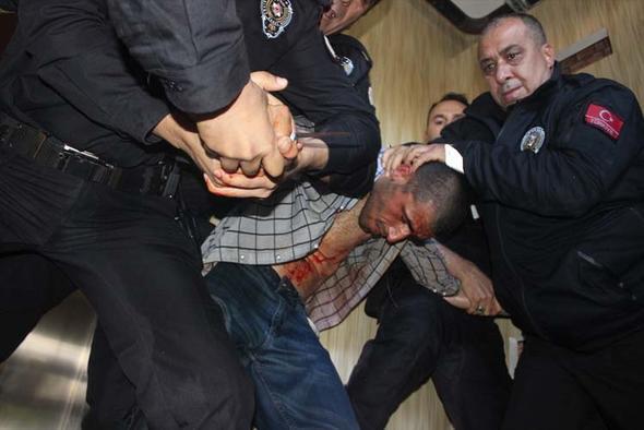 Adana'da dehşet anları !  Kendine böyle zarar verdi