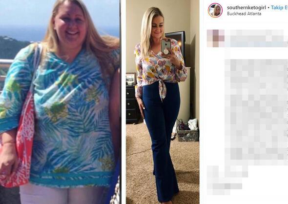 63 kilo veren kadını görenler tanıyamıyor