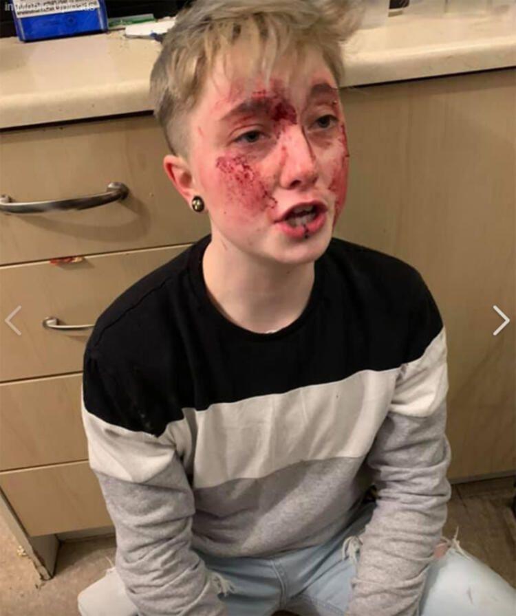 20 yaşındaki eşcinsel kadını hastanelik olana kadar dövdüler!
