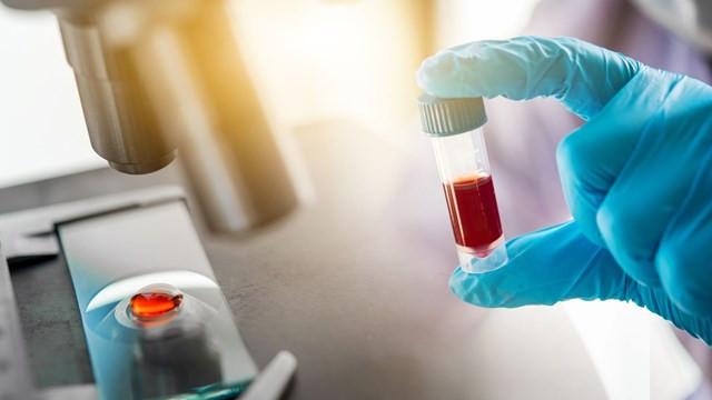 Koronavirüse karşı antikor üretimi en az 3 ay sürüyor