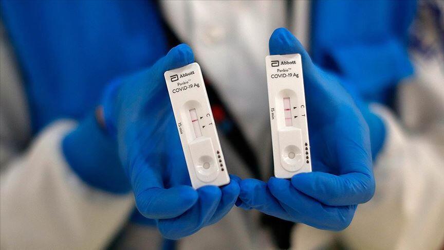 Hastaneye yatırılan koronavirüs hastalarında en çok bu belirtiler görüldü - Resim: 4