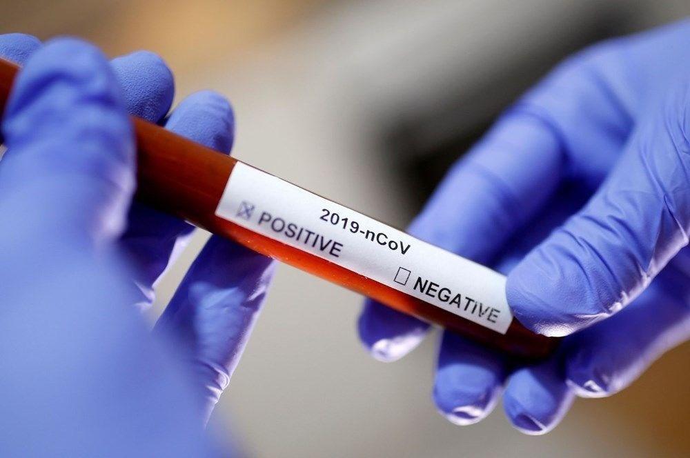 Koronavirüste en çok kadınlar mı yoksa erkekler mi ölüyor?