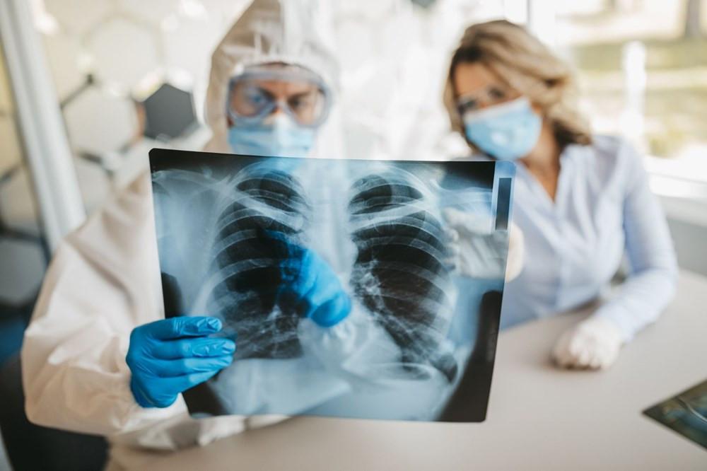 Koronavirüsün akciğerleri nasıl ele geçirdiği adım adım görüntülendi