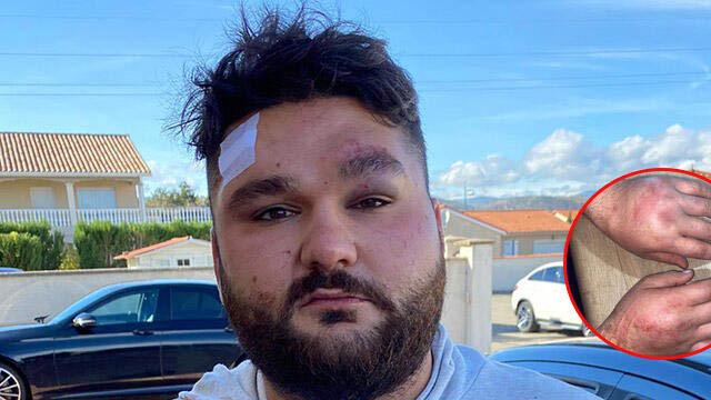 Fransa'da Ermeni protestocular saldırmıştı! O genç konuştu