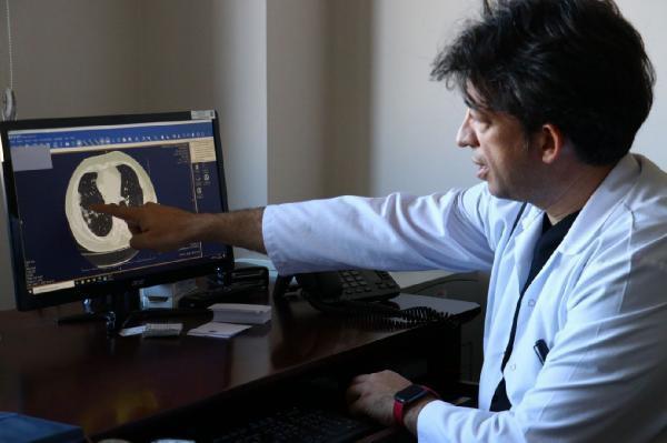Koronavirüsün akciğerdeki hasarı tomografi ile görüntülendi