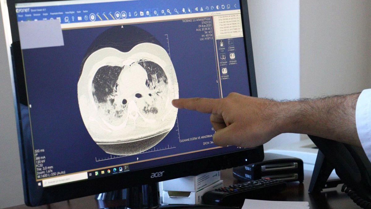 İşte koronavirüsün akciğere verdiği zarar