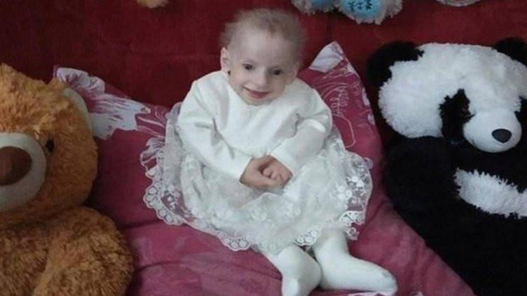 Benjamin Button'un hikayesi gerçek oldu: 8 yaşındaki çocuk yaşlılıktan öldü
