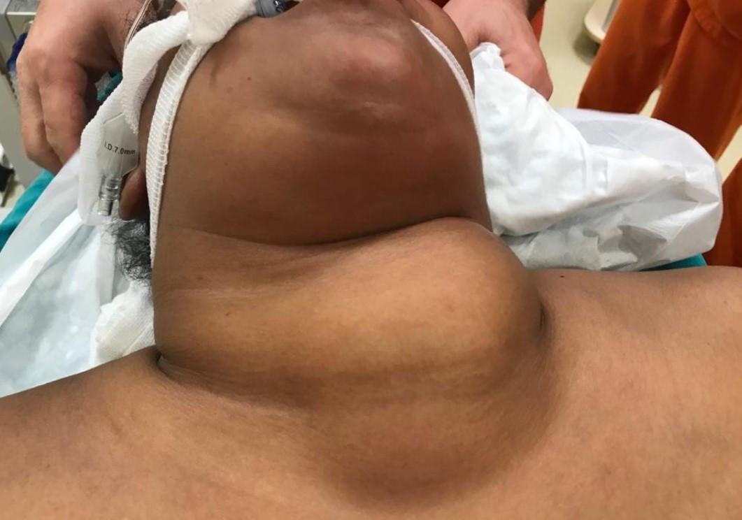 Somalili hastanın boğazından çıkan madde şoke etti