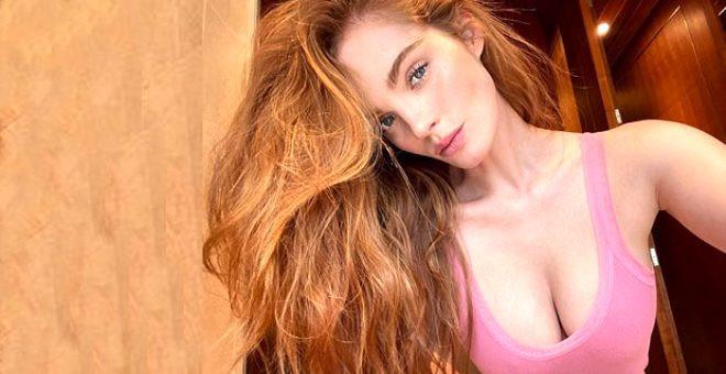 Victoria's Secret'ın kızıl meleği virüs kaptı!
