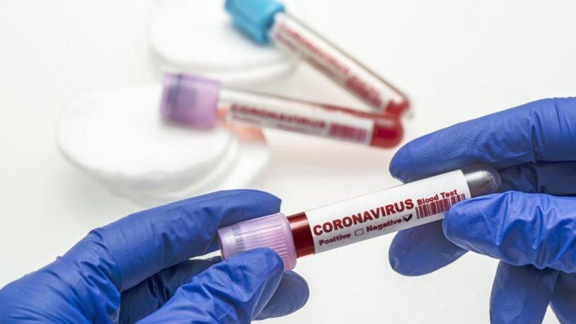 Koronavirüsten ölümlerinde test sonuçları nasıl negatif çıkıyor?