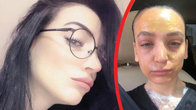 Reklam oyuncusu dehşet yaşadı ! Lavabo açıcı yüzüne patladı